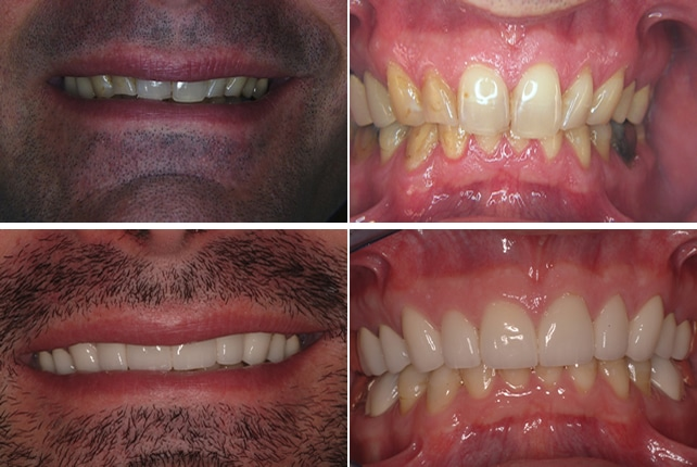 aesthetic-dentistry before and after
