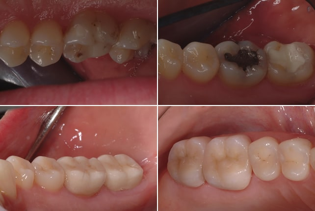 sensitive-teeth-treatment