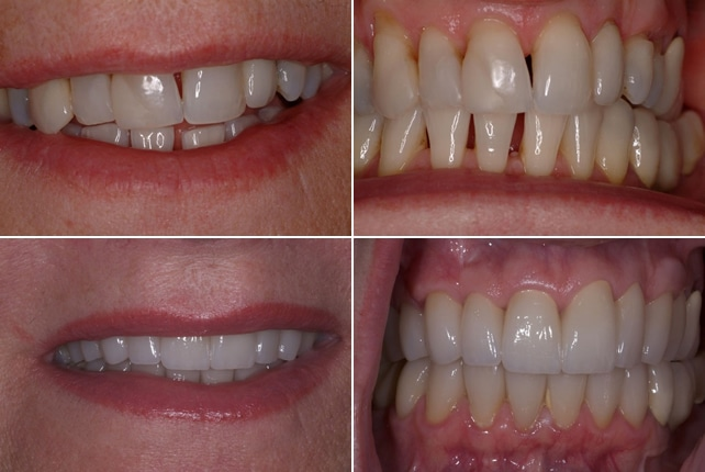 teeth-gap-treatment
