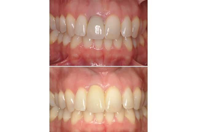 single implant case study