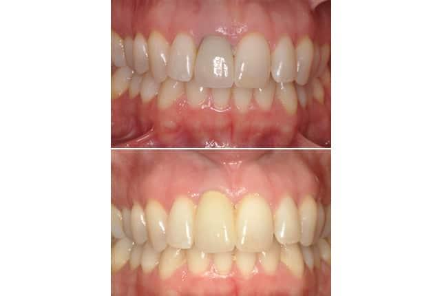 single implant case study